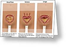 Types Of Incontinence Greeting Card