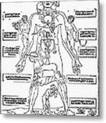 Bloodletting Chart, 1493 Metal Print
