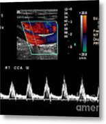 Carotid Duplex Ultrasound Exam Metal Print