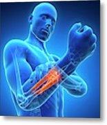 Human Arm Pain Metal Print