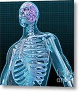 Human Skeleton And Brain, Artwork Metal Print