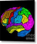 Mri Of Normal Brain Metal Print
