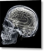 The Skull And Brain Metal Print