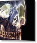 The Skull And Paranasal Sinuses Metal Print