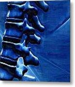 Thoracic Spine Metal Print