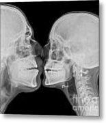 X-ray Kissing Metal Print
