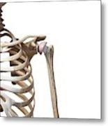Human Shoulder Replacement Metal Print