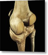Knee Bones Right Metal Print