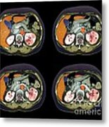 Kidney Infection, Ct Scan Metal Print