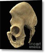 Pelvic Bones Male Metal Print