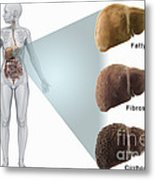 Stages Of Liver Disease Metal Print