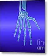 X-ray View Of Human Hand Metal Print