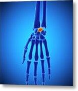 Hand Bones Metal Print