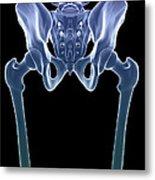 The Skeleton Metal Print