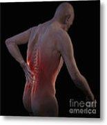 Back Pain Metal Print