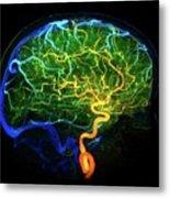 Brain Blood Vessels Metal Print