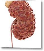 Polycystic Kidney Metal Print