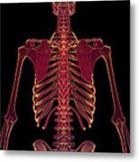 Bones Of The Upper Body Metal Print