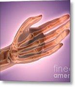 Conceptual Image Of Bones In Human Hand Metal Print