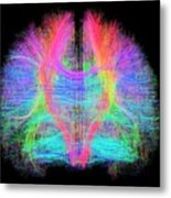 White Matter Fibres Of The Human Brain Metal Print