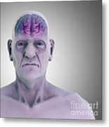 Geriatric Brain Metal Print