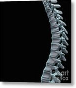 Spinal Anatomy Metal Print