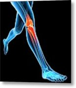 Human Knee Joint Metal Print