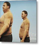 Obesity Metal Print