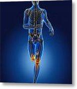 3d Running Medical Man Metal Print