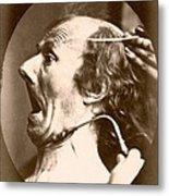 Duchenne's Physiognomy Studies, 1860s Metal Print