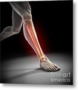 Medial Tibial Stress Syndrome Metal Print