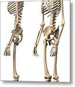 Anatomy Of Male Human Skeleton, Side Metal Print