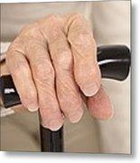 Arthritic Hand And Walking Stick Metal Print