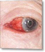 Bleeding Eye Metal Print