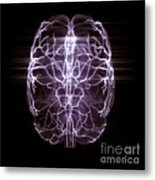 Blood Supply To The Brain Metal Print