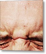 Closed Eyes Squinting And Forehead Metal Print