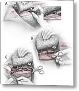 Color Illustration Depicting The Three Metal Print