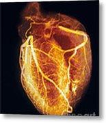 Colored Arteriogram Of Arteries Of Healthy Heart Metal Print