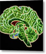 Coloured Ct Scan Of A Healthy Brain (side View) Metal Print