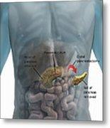 Distal Pancreatectomy Metal Print