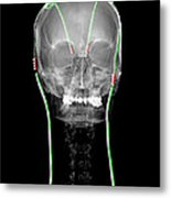 Enhanced Parkinsons Disease With Dbs Metal Print