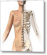 Female Body With Bone Skeleton Metal Print