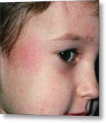 Fifth Disease: Slapped Cheek Mark On Boy Metal Print