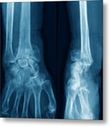 Fractured Wrist Metal Print