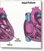 Healthy Heart Vs. Heart Failure Metal Print