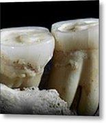 Homo Heidelbergensis Teeth Metal Print