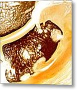 Horse Navicular Bone Pathology 30015 Metal Print