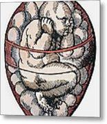 Human Fetus, 16th Century Metal Print