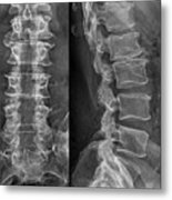 Laminectomy For Spinal Stenosis Metal Print