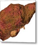 Liver Cirrhosis Metal Print